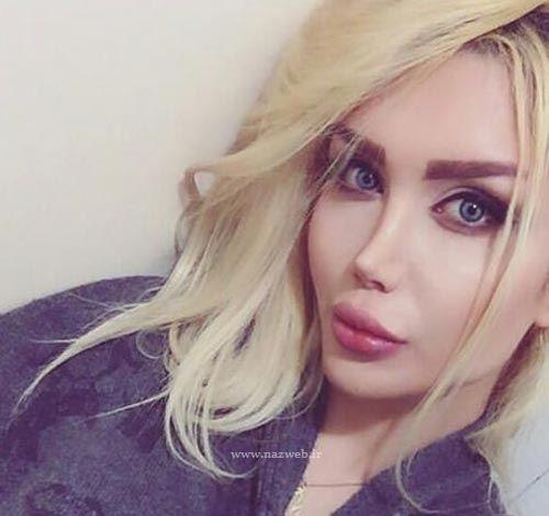 جراح بینی انسیه رحیمیان